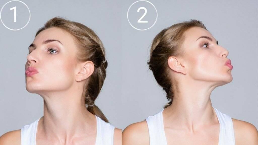 Нехирургическая подтяжка шеи – как убрать двойной подбородок и «шею индейки»