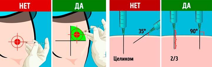 Как правильно сделать укол? | медицинский портал eurolab