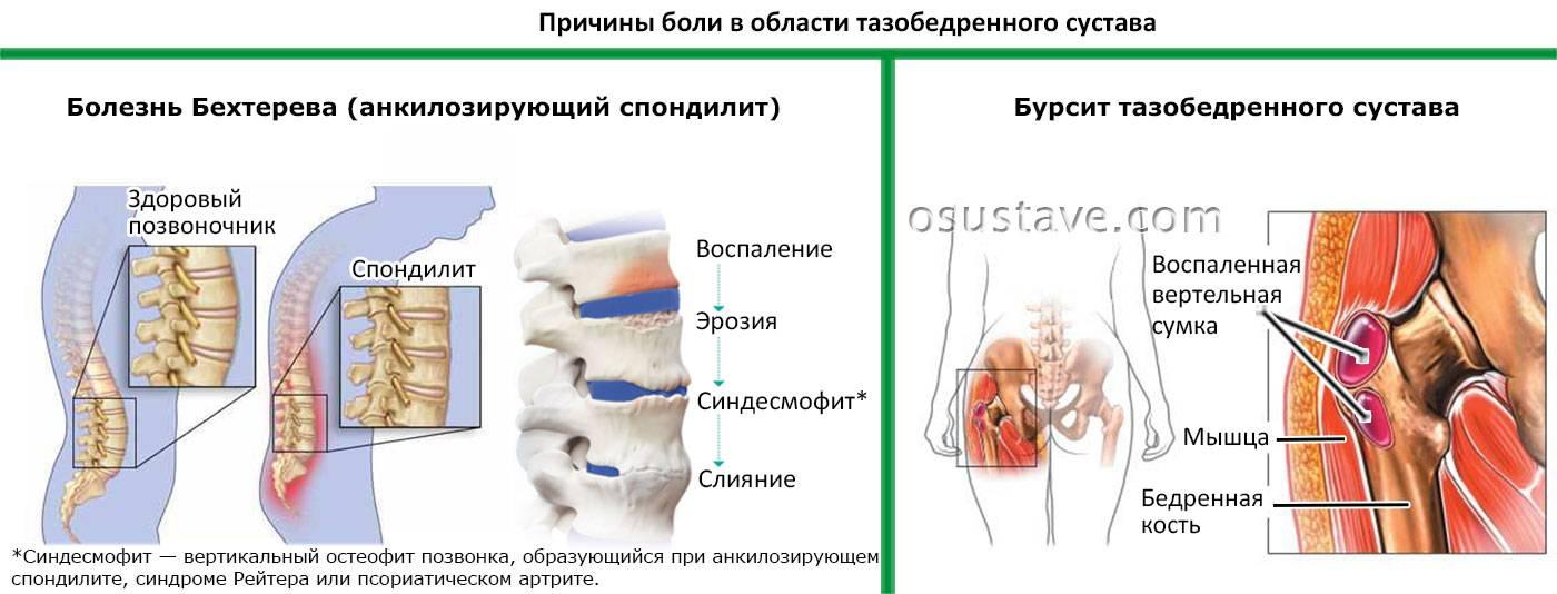 Боль в суставах. лечение боли в суставах