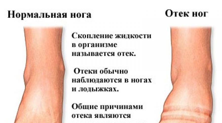 Посттравматический отек нижних конечностей. советы флеболога.