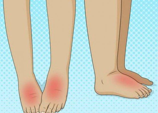 Болит и опух палец на ноге | сеть клиник «здравствуй!»