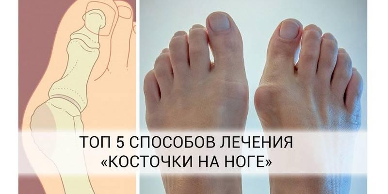 Гимнастика против косточек на ногах | компетентно о здоровье на ilive