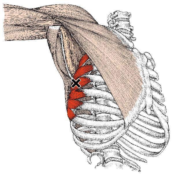 Упражнения на большеберцовую переднюю мышцу с собственным весом