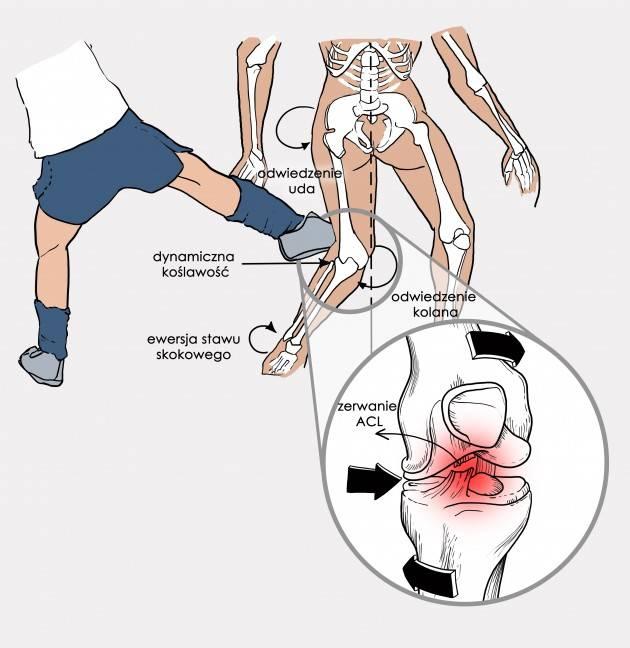 Травма колена: виды повреждений коленного сустава, первая помощь и лечение