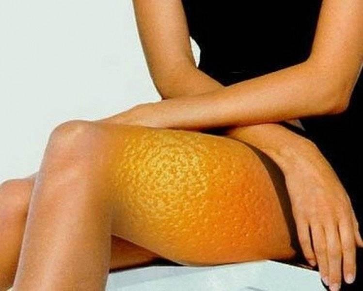 """Как избавиться от целлюлита? упражнения, антицеллюлитный массаж – избавляемся от """"апельсиновой корки"""" в домашних условиях и в салоне - сибирский медицинский портал"""