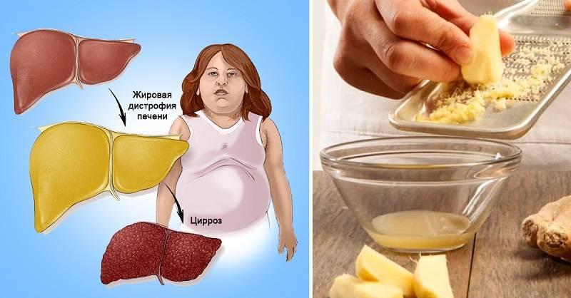 Лечение обострения артроза суставов