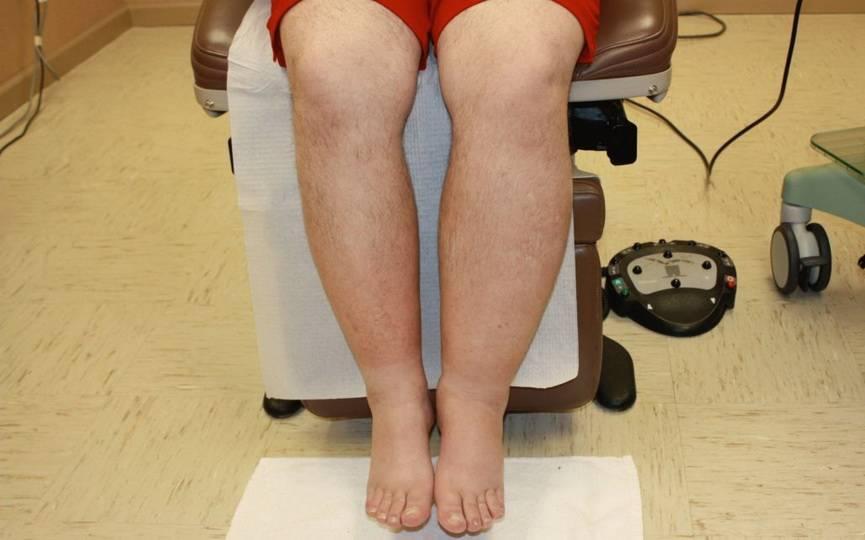 Основные причины отека ног у женщин и мужчин. что делать в домашних условиях