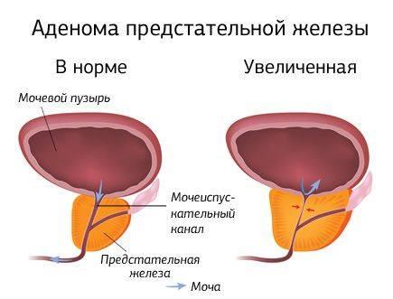 Аденома простаты – доброкачественная опухоль простаты: причины, симптомы, диагностика и методы лечения на сайте «альфа-центр здоровья»