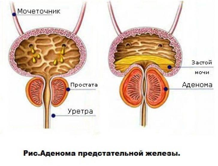 Аденома простаты у мужчин – симптомы, лечение, фото.