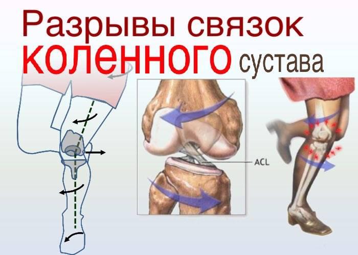 Оказание первой помощи при травме коленного сустава и голени