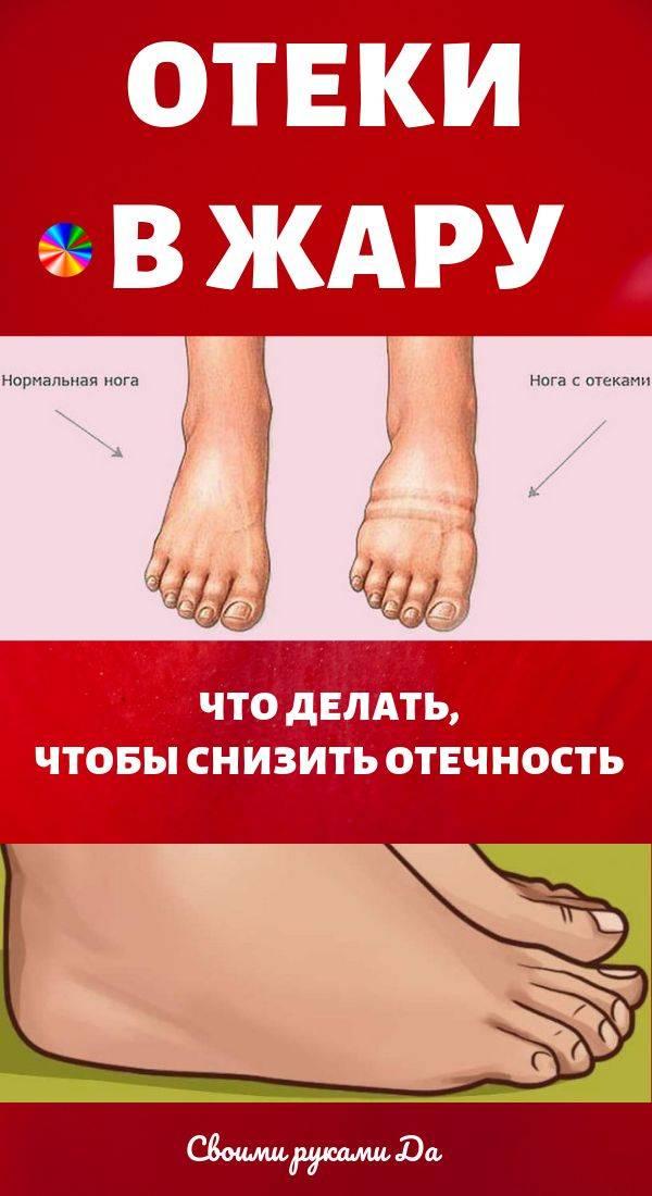 Лимфостаз нижних конечностей: чем грозят отеки ног?   компетентно о здоровье на ilive