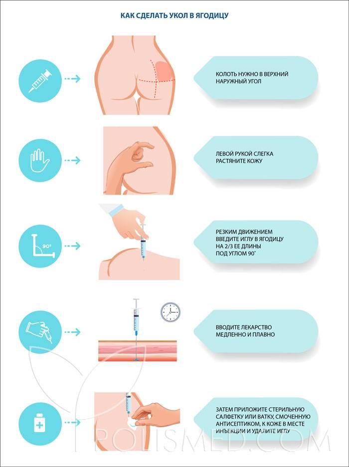 Как сделать укол, инъекции дома: сделать укол в домашних условиях: инструкция как сделать дома укол для неспециалистов