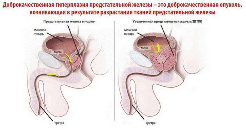 Аденома простаты (увеличение предстательной железы)