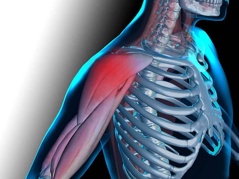 Молочная кислота и лактат в мышцах: что такое и как выводить
