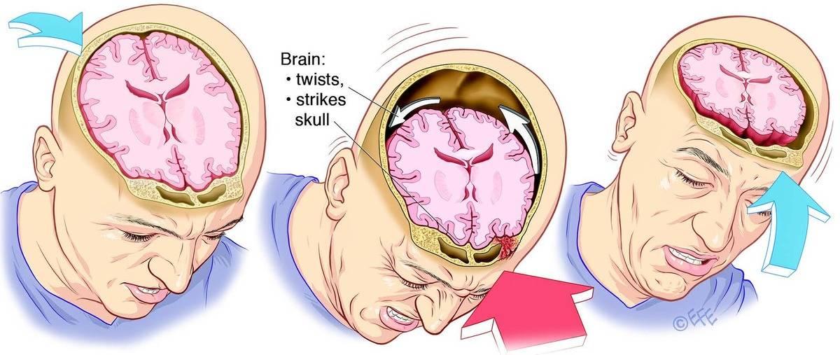 Методические рекомендации к трактовке и экспертной оценке клинического диагноза сотрясения и ушиба головного мозга