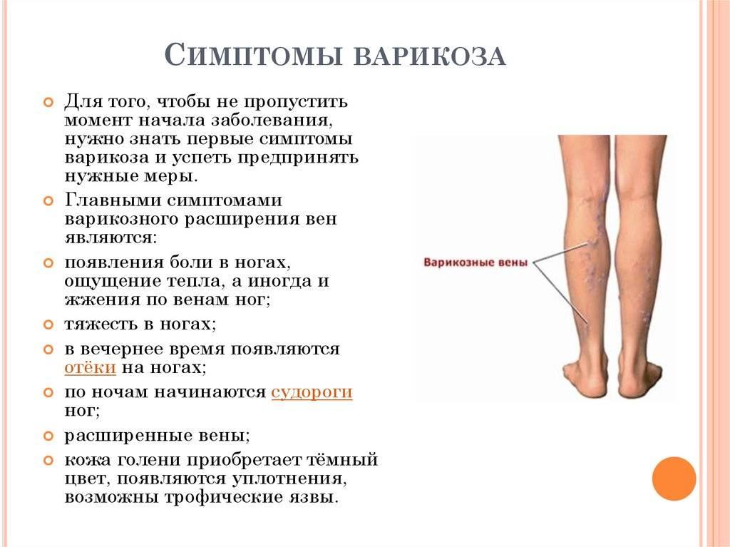 Почему отекают ноги в щиколотках?