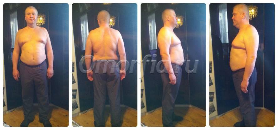 Удержать вес после бариатрического похудения