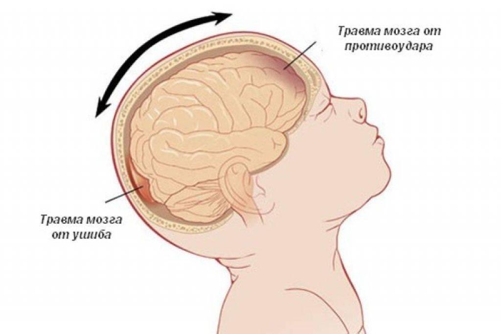 Осложнения после травм головного мозга (сотрясение, ушиб головного мозга) - болезни - медицинский центр клиника здоровья