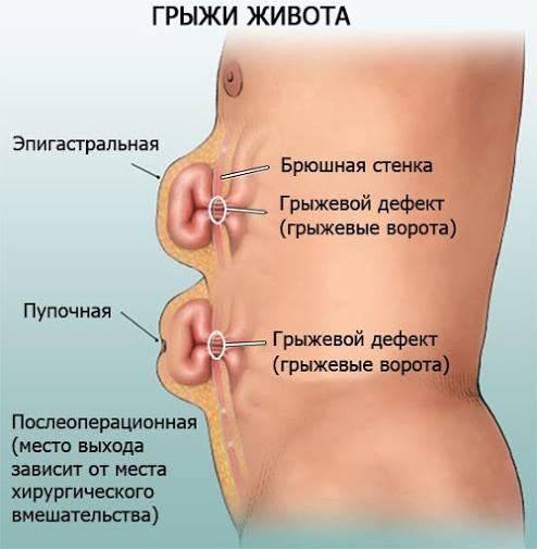 Боли в области пупка у женщин: причины, диагностика, лечение