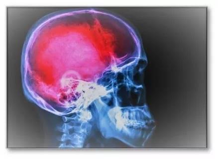 Сотрясение мозга – причины, симптомы, диагностика, типы сотрясений и лечение сотрясений мозга.