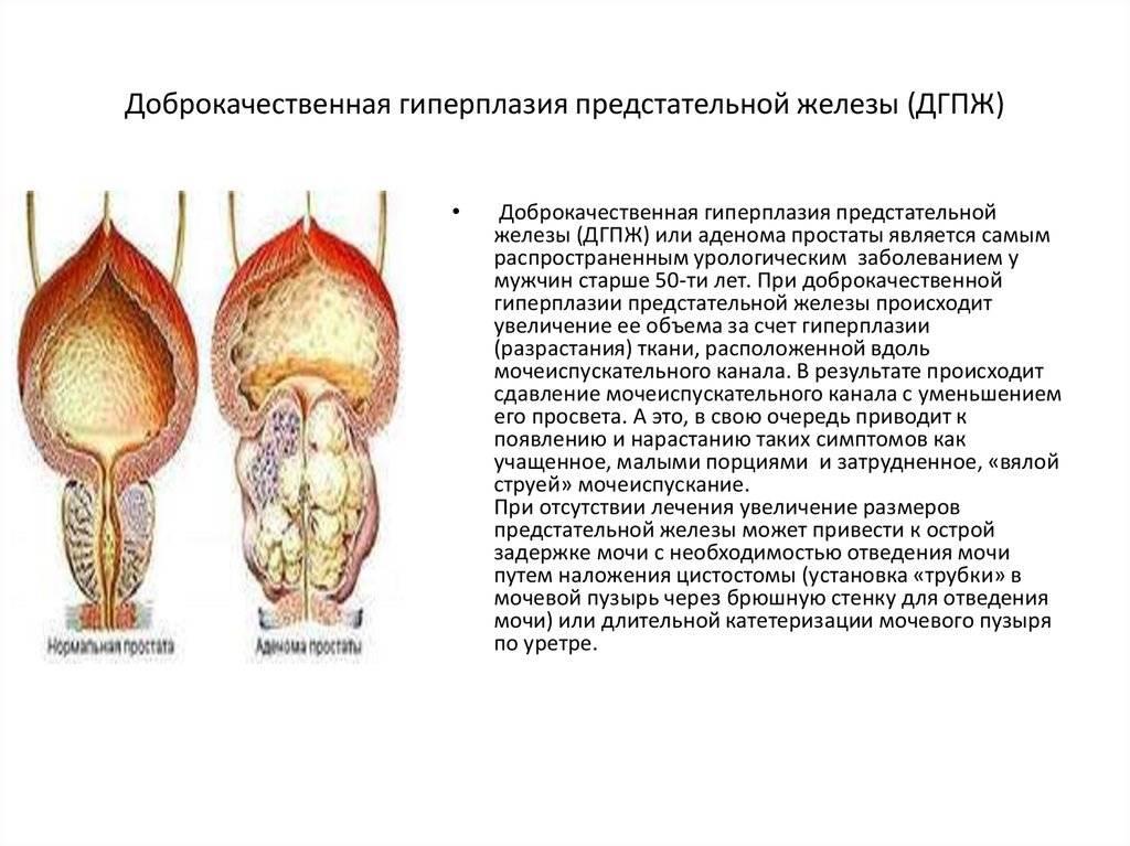 Аденома простаты (доброкачественная гиперплазия предстательной железы)