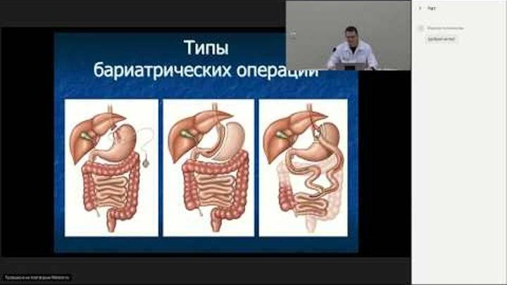 Урезать желудок — не выход: истории людей, набравших вес после бариатрической операции