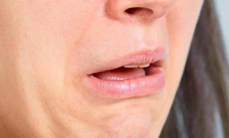 Жжение языка: причины, симптомы, лечение