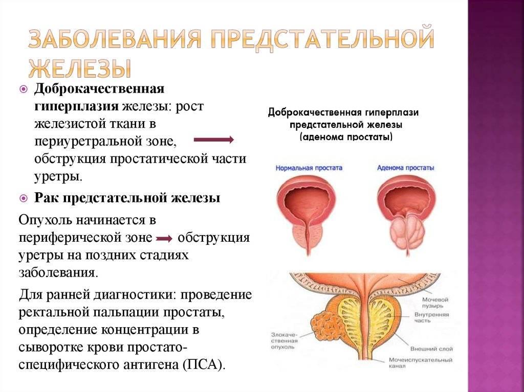 Гиперплазия предстательной железы: болезнь или состояние?