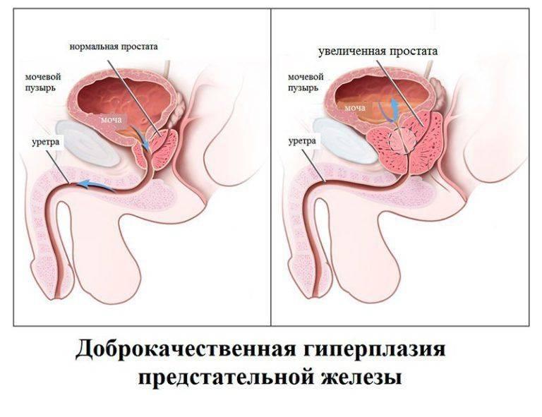 Аденома предстательной железы или дгпж