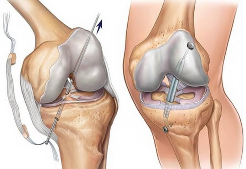 Надрыв связок колена, частичный разрыв связок коленного сустава - travmasport