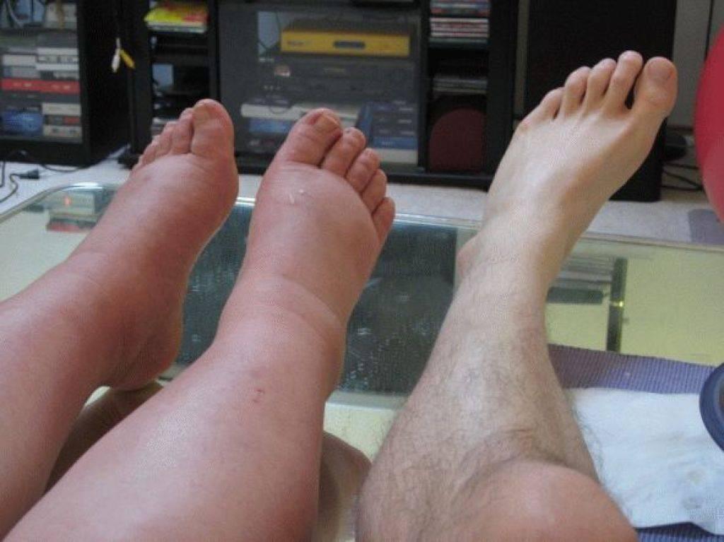 Венозные заболевания – отеки лодыжек и ног поддаются лечению