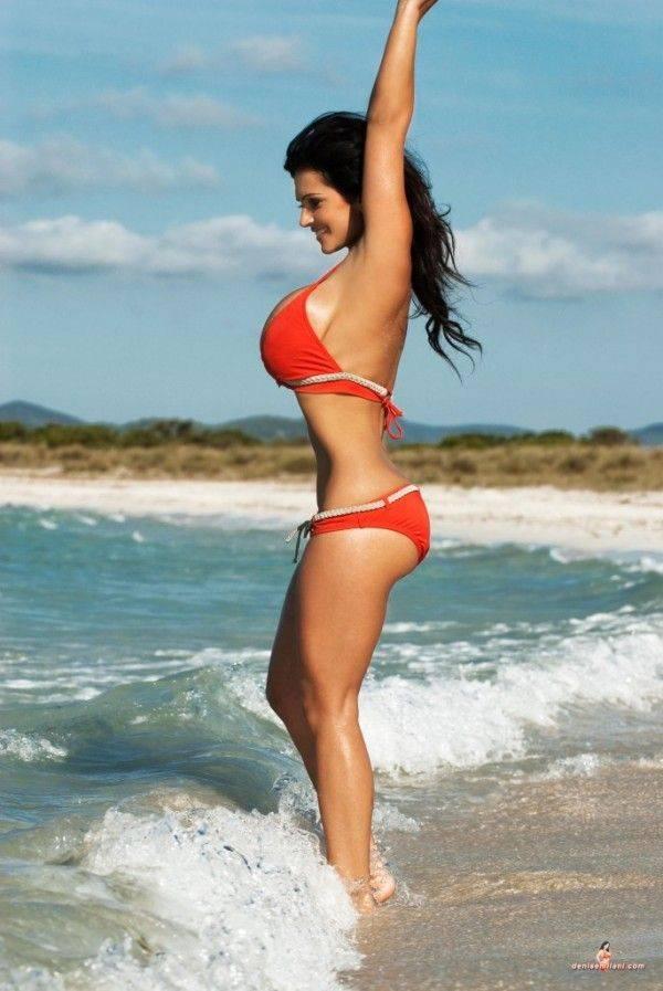 Мелани гайдос, модель с редким генетическим заболеванием: мир жесток, но она в него вписалась
