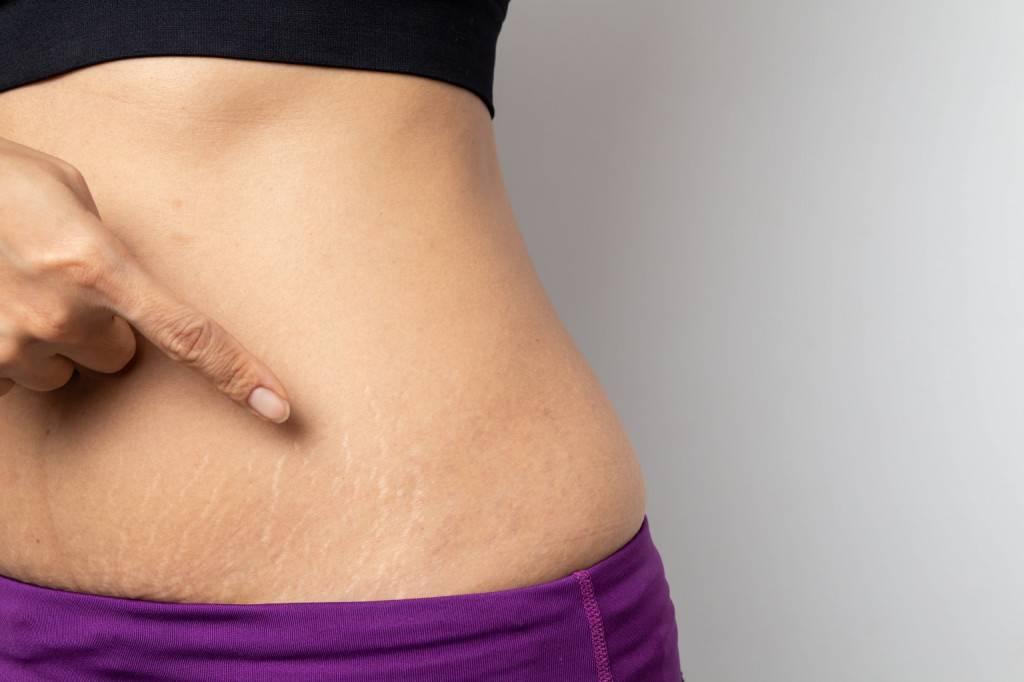Как убрать растяжки на ногах и теле? ✔️ эффективные способы