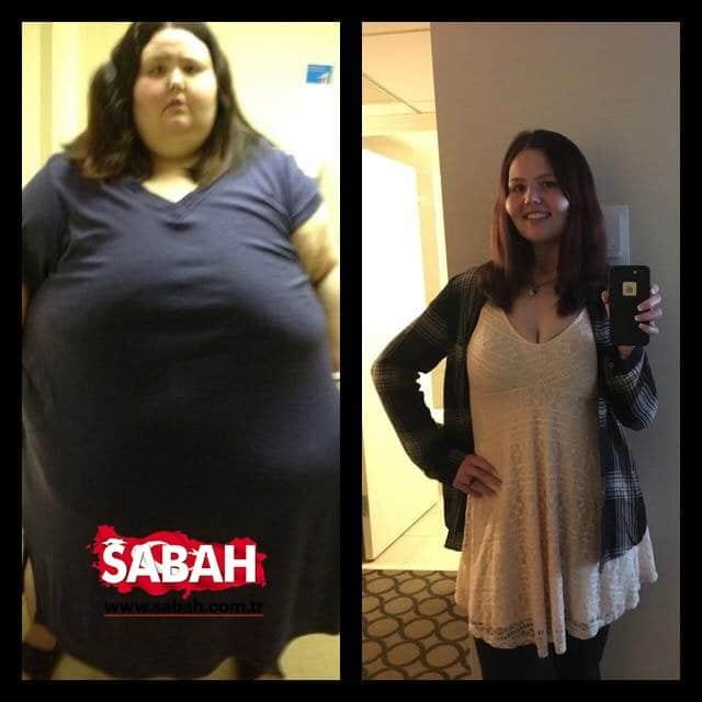Как удержать вес после бариатрического похудения