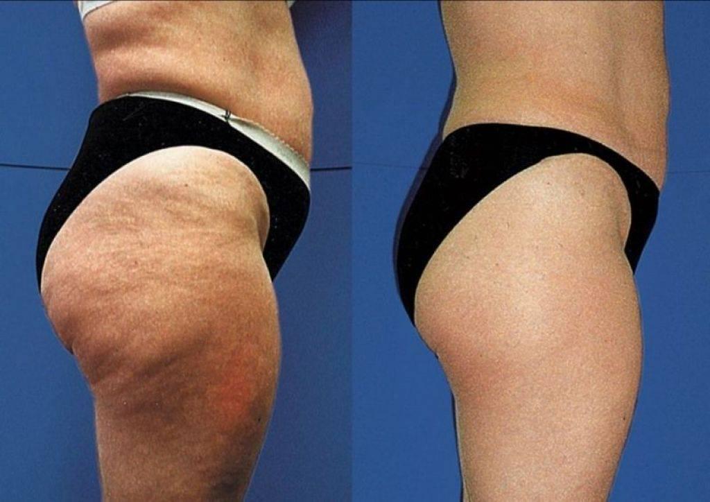 Как избавиться от складок под попой (вторая складка)   тренировки, как похудеть и накачать мышцы