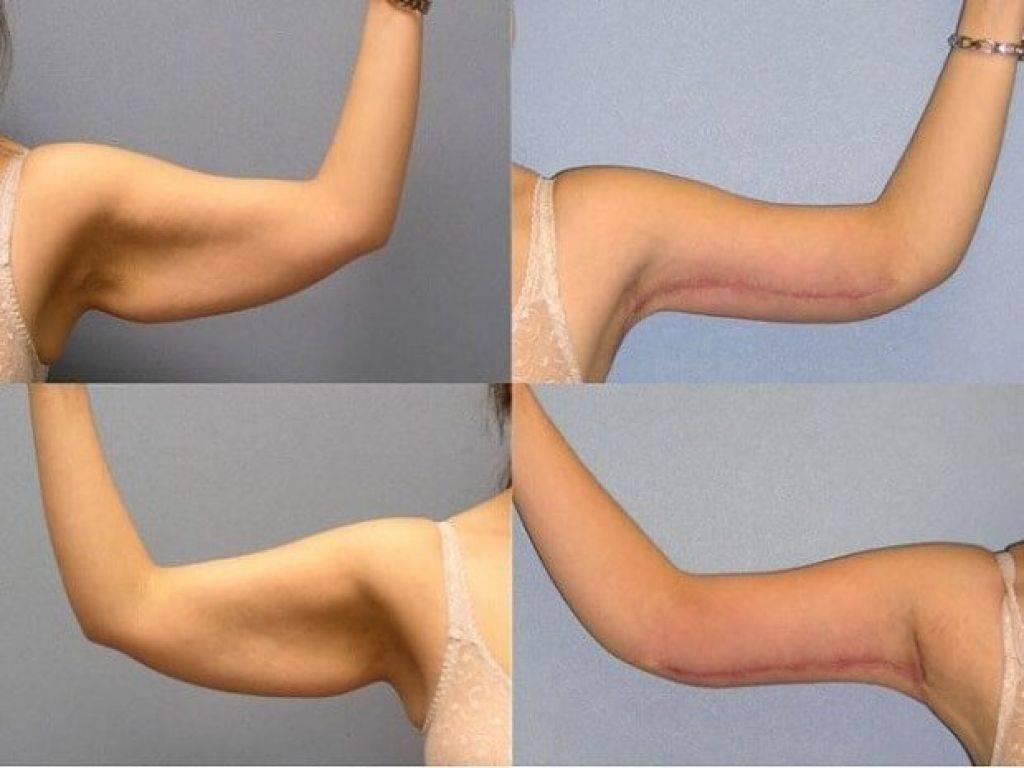 Тренировки для рук, чтобы не висела кожа