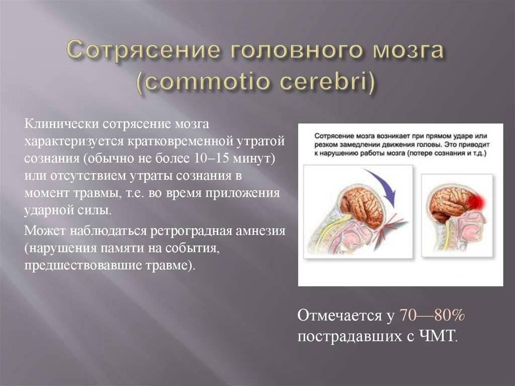 Сотрясение мозга: ужасные факты