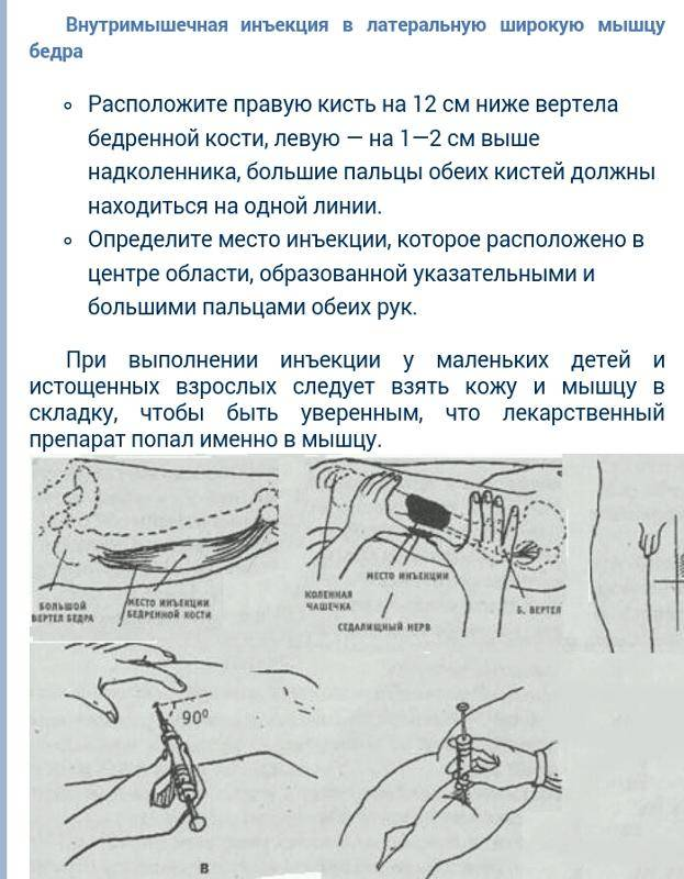 Внутримышечные и внутривенные инъекции