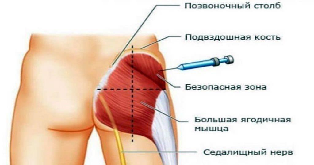 Безопасная техника инъекций | санкт-петербургский центр последипломного образования работников со средним медицинским и фармацевтическим образованием фмба россии