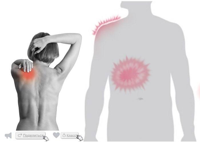 Болит спина справа и лопатка – типы боли, причины, профилактика болей правой лопатки и спины