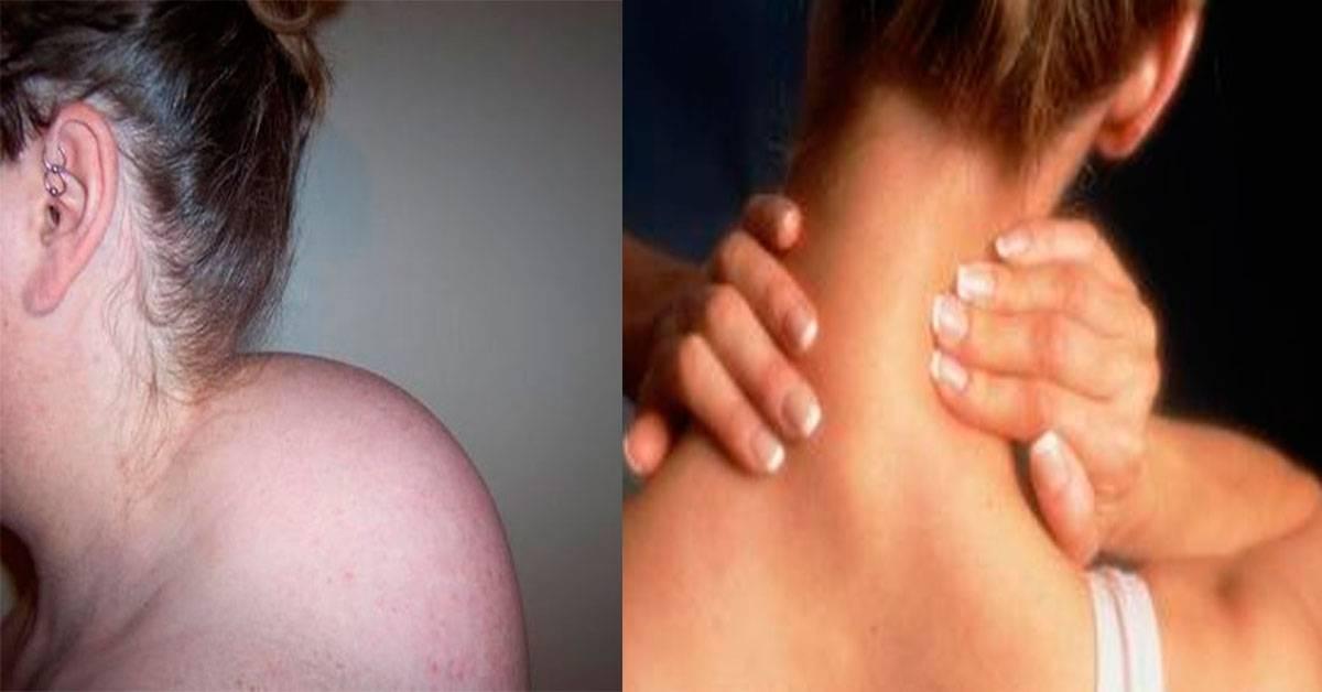 Как избавиться от отложения солей в суставах и на шее?