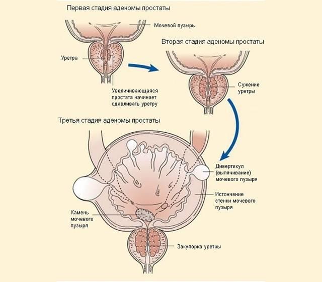 Аденома простаты: причины, стадии заболевания, возможные осложнения. симптомы и методы лечения аденомы простаты
