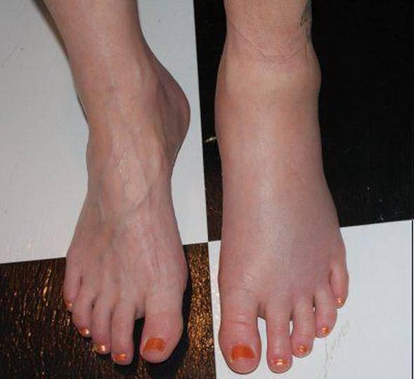 Отёк голеностопного сустава: лечение в москве