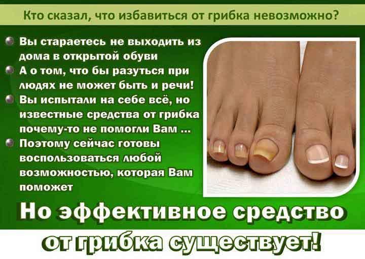 Лечим грибок ногтей эффективными народными средствами