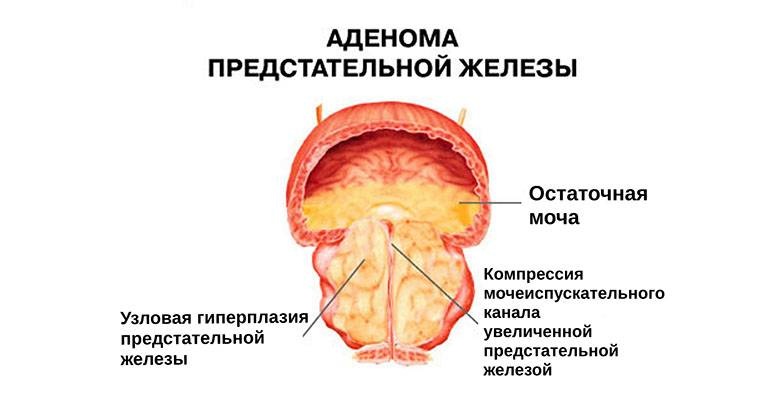Аденома простаты у мужчин – симптомы, лечение, причины, диагностика