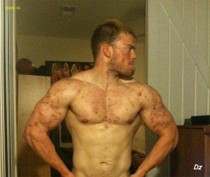 Гормон роста для мужчин - как принимать   влияние гормона роста в бодибилдинге
