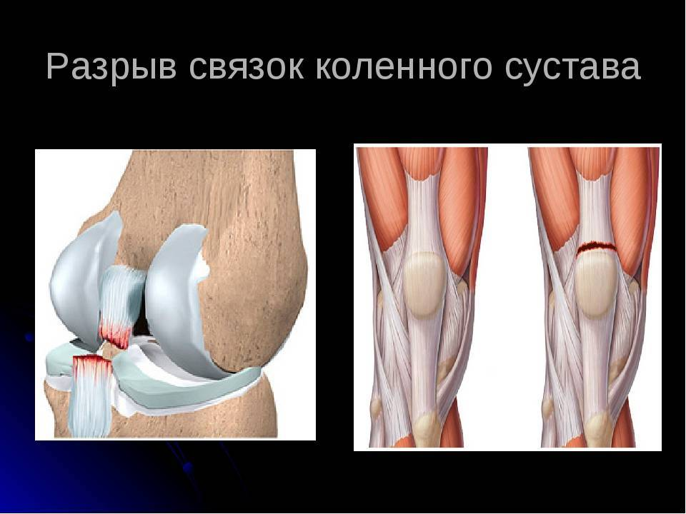Первая помощь при травмах колена и голени